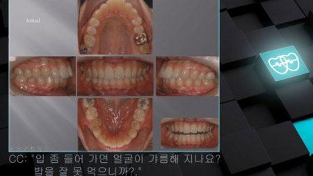 [교정 Case 423] 비대칭발치, U4, U6 발치, Protrusion, Lower Stripping, Three Lower Incisors, Molar Substitution.