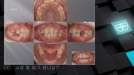 [교정 Case 519] U4L4 발치, Class III, Severe Protrusion and Dental Crowding.
