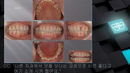 [교정 Case 719] 비대칭 발치 (#15, #23, #41 발치), Skeletal Class III, Dental Midline Correction.