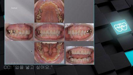 [교정 Case 1017] U5L1 발치, Big Tori, Protrusion, Proclined Upper Incisors, 성인교정, Lower Lingual Corticotomy.