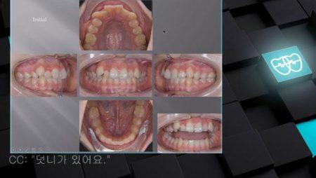 [교정 Case 931] U4 발치, Dental Class II, Upper Severe Crowding.