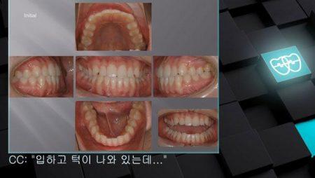 [교정 Case 337]  U5L5발치, Class III, Protrusion, Detorqued Lower Incisors, Lower Lingual Corticotomy를 부분응용.