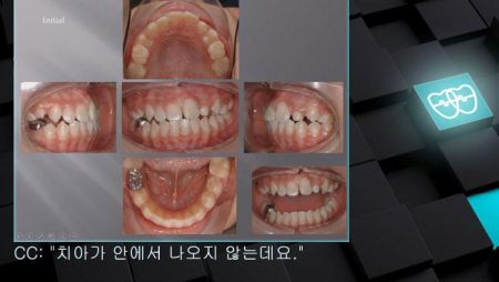 [교정 Case 344] 비대칭 발치(#15, #22, #35, #45 발치), Impacted Upper #23, #22 Malformed, Protrusion Profile.