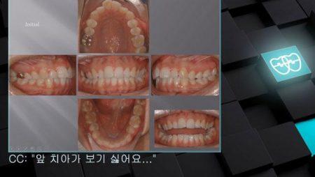[교정 Case 358] #14, #24, #45 발치, #35번 Missing, Protrusion, Skeletal Class II, Gummy Smile 가능성, Lower Midline 수정.