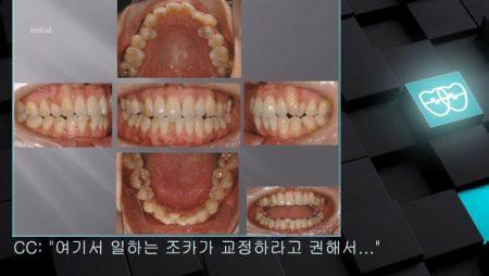 [교정 Case 405]  U5L1 발치, Skeletal Class II, Protrusion, Dental Crowding.