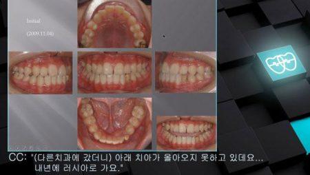 [교정 Case 412]  Impacted Lower Canine (#33) Retrieval, Limited Time for Orthodontic Treatment.