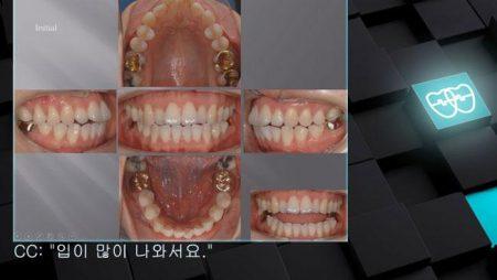[교정 Case 427] 비대칭 발치(#15, #25, #35, #46 발치), #46 Hopeless, Skeletal Class I, Dental Openbite, Protrusion.