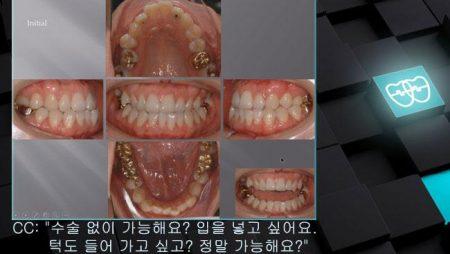 [교정 Case 457]  #25, #35, #45 발치 (#15 Missing), Skeletal Class III, Anterior Crossbite, Protrusion, Lower Lingual Corticotomy.