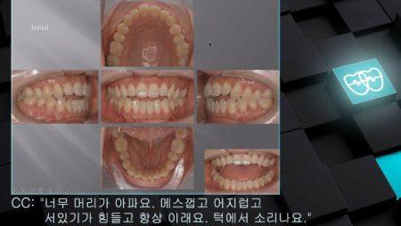 [교정 Case 534]  U5L5 발치, Severe TMJ Patient, Dental Openbite.