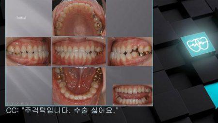 [교정 Case 594]  L4 발치 Only, Skeletal Class III, Anterior Crossbite, Lower Lingual Corticotomy, Lower Protrusion.