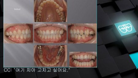 [교정 Case 721]  24번 발치 Only, 비대칭 발치, Upper Midline Correction with Miniscrew.