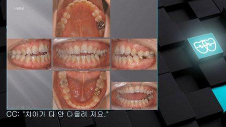 [교정 Case 325]  비발치, Class III,  Dental Openbite, Posterior Crossbite.