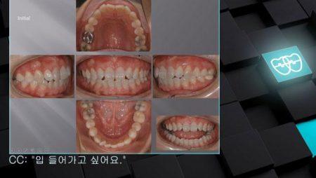 [교정 Case 335]  U4L5발치, 돌출입, 성인교정, Gingivectomy and Alveoloplasty, Root Resorption.