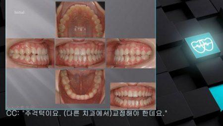 [교정 Case 479]  비발치, Class III, Anterior Crosssbite, Three Lower Incisors(Congenital Missing of One Lower Incisor).