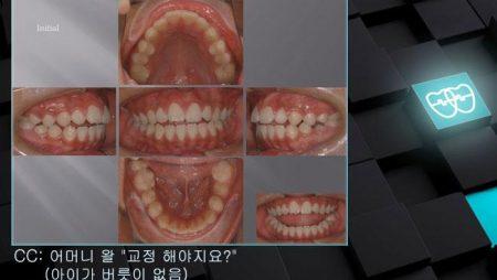 [교정 Case 378]  U4L5 발치, Protrusion, Dental Openbite, Oral Hygiene Problem.