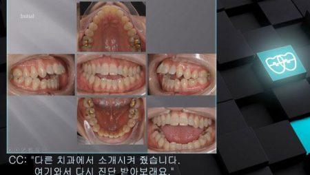 [교정 Case 644]  U5L1 발치, 심각한 Dental Openbite, Severe Class II, Upper Palatal Corticotomy.