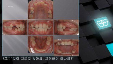 [교정 Case 898]  비발치, Late Mixed Dentition에 2차 교정을 시작하기, Expansion, #37 Impaction.
