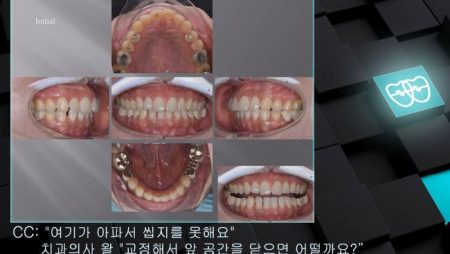 [교정 Case 964]  비발치, Anterior Lower Space, Prosth-Ortho.