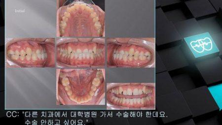 [교정 Case 983]  L4 발치 Only, Class III, Anterior Crossbite, Lower Lingual Corticotomy, Arch Coordination.