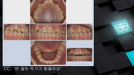 [교정 Case 1107]   U5L4 발치, Class III, Lower Lingual Corticotomy 필요, 타치과 Case로 Refer 되어 옴.