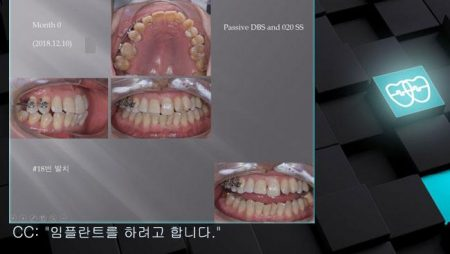 [교정 Case 1182]  부분교정, Space Gaining for Implant #15.