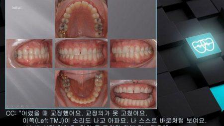 [교정 Case 314]  비발치, TMJ Pain, Functional Shift, Bruxer.