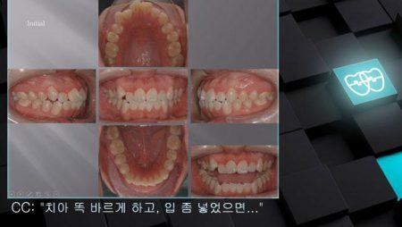 [교정 Case 761]  U5L4 발치, Severe Protrusion, Relapse(Bite Open), Unexpected Resistance, Lower Lingual Corticotomy, Lip Incompetency.