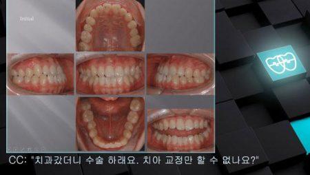 [교정 Case 860]   L4 발치, Anterior Crossbite, Functional Shift, Lower Lingual Corticotomy.