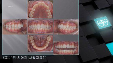 [교정 Case 952]  비발치, Dental Class II, IMPA 각도 정의, Growing Pt.