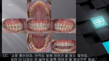 [교정 Case 991] L1 발치, Class III, Dental Midline, Functional Shift, Lower Lingual Corticotomy.