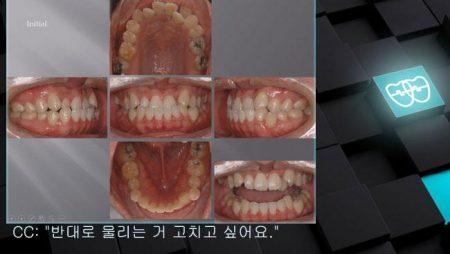 [교정 Case 677]  One L. Incisor 발치, Skeletal Class III, Anterior Crossbite, 진단실수, Lower Lingual Corticotomy.
