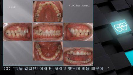[교정 Case 709] 12번 발치, 22번 Congenital Missing, Dental Midline, Skeletal Class II, Skeletal Resistance, Root Resorption, Prosth-Ortho.