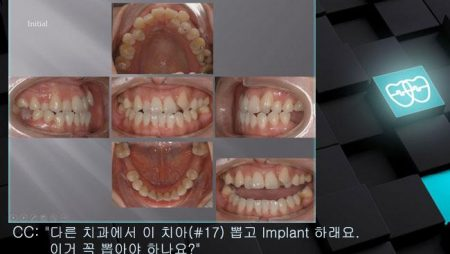 [교정 Case 732]  U7 발치, Skeletal Class III, Proclined Upper Incisors, Molar Substitution, Prosth-Ortho.