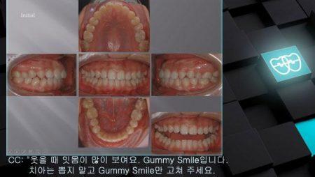 [교정 Case 795]  비발치, Gummy Smile, Upper Occlusal Table Intrusion, Miniscrew 뿌리 손상.