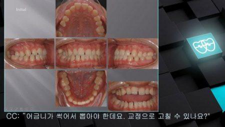[교정 Case 879] 비대칭 발치, #16 발치, Molar Substitution, Low Sinus.
