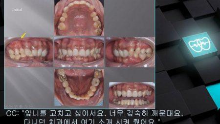 [교정 Case 987] Severe Deepbite, Upper Palatal Corticotomy, 부작용, Gummy Smile, TMJ, Prosth-Ortho.