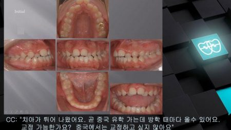 [교정 Case 377] 비발치, Gummy Smile, Proclined Upper Incisors, Functional Shift, Anterior and Posterior Crossbite.