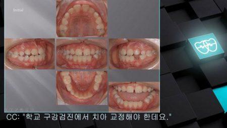 [교정 Case 465(1)] 비발치, Anterior Crossbite, RHG, Phase I.