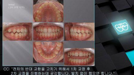 [교정 Case 465(2)] 비발치, Class III, RHG, Relapse due to Growth.