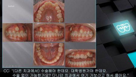 [교정 Case 836] U4L4 발치, Skeletal Class III, Bonded RPE, Anterior and Posterior Crossbite, Lower Lingual Corticotomy.