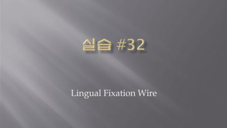 [실습 32] Lingual Fixation Wire.