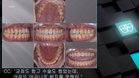 [교정 Case 1066] 재교정, 비발치, Anterior Crossbite, Bilateral Edge-to-edge Bite, Lower Lingual Corticotomy.
