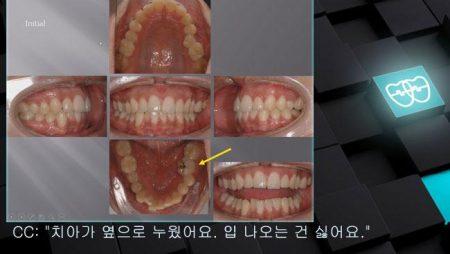 [교정 Case 637] U5L5 발치, Posterior Scissor-bite, Strong Muscle.