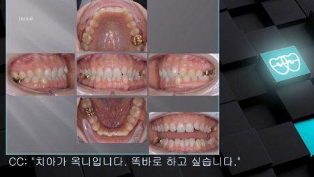 [교정 Case 1092] 비발치, Class II Div. 2, Detorqued Anterior Teeth, Dental Deepbite.