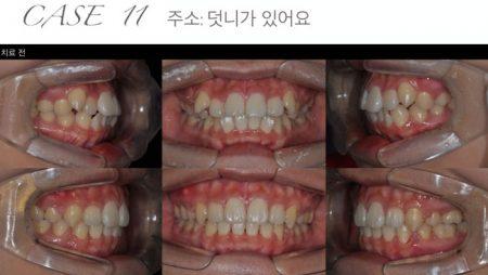 [교정 Case 11] 중등도 crowding을 동반한 성인 환자의 MA-RPE와 발치를 동반한 교정치료