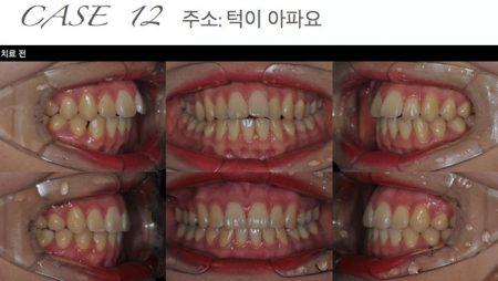 [교정 Case 12] 하악 측절치 결손과 턱관절 통증을 동반한 환자의 교정치료