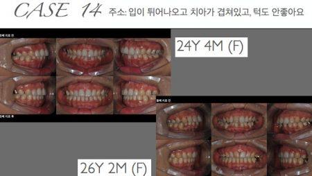 [교정 Case 14] 턱관절 질환를 보이는 골격적 2급 일란성 쌍둥이의 발치 교정치료