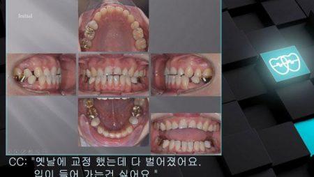 [교정 Case 1178] 재교정, Damaged Crowns and Roots, Prosth-Ortho.
