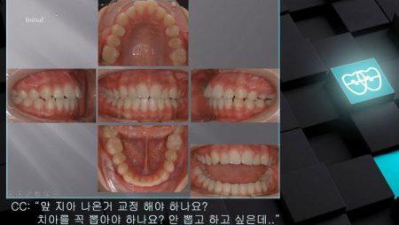[교정 Case 899] U5 발치, Class II, Moderate Protrusion with Overjet, Possibility of Gummy Smile.