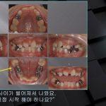 [교정 Case 906] 1차 교정, #22 Congenital Missing, Impacted #46.